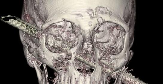 Una nueva increíble operación de neurocirujano venezolano-israelí en el hospital Hadassah